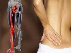 dor no nervo ciático - o que fazer?