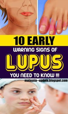 10 Early Warning Signs of Lupus You Need to Know health cancer women health remedies 814236807615912247 Healthy Beauty, Healthy Tips, Healthy Weight, Healthy Eating, Signs Of Fibromyalgia, Thyroid Issues, Warning Signs, Health Advice, Natural Medicine