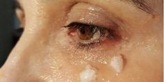 Os tratamentos de beleza com óleo de coco são ótimos para a pele e o cabelo.    A maioria qu...