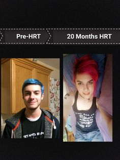 Male To Female Transition, Mtf Transition, Transgender Mtf, Transgender People, Mtf Hrt, Trans Mtf, Mtf Before And After, Male To Female Transformation, Strong Girls