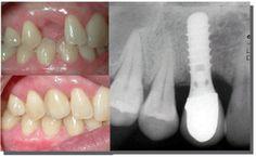 Để ghép răng Implant hoàn thiện có thể mất tới vài tháng nhưng cũng có thể dài hơn nếu không đáp ứng đầy đủ các điều kiện tốt nhất cho ca phục hình. Vậy khi nào thì Ghép răng Implant mất ít thời gian và thuận lợi nhất? Những thông tin được cung cấp sau đây sẽ cho bạn cái nhìn rõ hơn về kỹ thuật trồng răng tân tiến nhất hiện nay.