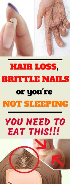 EAT THIS IF YOU HAVE HAIR LOSS, BRITTLE NAILS OR YOU'RE NOT SLEEPING! #hair #nails #brittle #sleeping