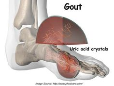 What You Should Know About Gout and Gall Bladder Disease