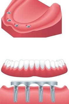 Farahmand is the best cosmetic dentist in Arcadia specializes in implant supported dentures and also provides you info about benefits of dental implants. Implant Dentist, Teeth Implants, Dental Hygienist, Dental Assistant, Dental Health, Dental Care, Oral Health, Dental Group, Dental Center