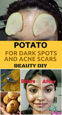 Acne leaves behind dull spots and scars that are especially difficult to discard. Nothing can work better than anything potato to attempt and out skin tone, illuminate it up and help the uneven sta…