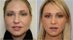 How to reduce face fat fast and naturally? Get rid of face fat in a week. Exercises to lose face fat. Burn face fat. Foods to lose facial fat in 10 days.