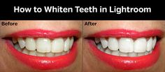 Learn how to brighten and whiten teeth very easily in Adobe Lightroom with the help of this simple tutorial.