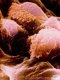 Lung alveolar cells.