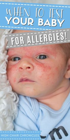 Think your child has food allergy symptoms? Check out this post for when to test your baby for food allergies and how to get allergy relief for kids and infants. If your child has an allergic reaction, it's important to get to the bottom of it whether you notice an allergic reaction rash (a baby rash on face or on the body) or other symptoms like reflux and tummy troubles. Know when and how to test your baby for food allergies with these important parenting tips! Food Allergy Symptoms, Food Allergies, Baby Rash On Face, Postpartum Recovery, Baby Gear, Baby Food Recipes, New Moms, Parenting Hacks, Breastfeeding