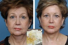 """Anti-Ageing Cream Hailed As """"Better Than Botox"""" Gets Biggest Deal In Dragons' Lair History Anti Aging Medicine, Circulation Sanguine, Under Eye Bags, Eye Wrinkle, Les Rides, Wrinkle Remover, Anti Aging Cream, Plastic Surgery, Serum"""