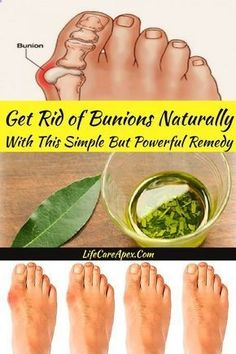 Health Beauty Remedies Get Rid of Bunions Naturally With This Simple But Powerful Remedy Health Tips For Women, Health Advice, Health And Beauty, Health Care, Health Diet, Bone Health, Home Medicine, Natural Medicine, Herbal Medicine