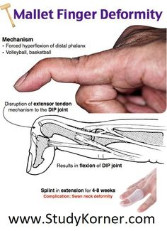 Discover thousands of images about Swan Neck Deformity Mallet Finger Physical Therapy Human Body Anatomy, Human Anatomy And Physiology, Musculoskeletal System, Medical Anatomy, Emergency Medicine, Medical Imaging, Medical Science, Medical Information, Physical Therapy