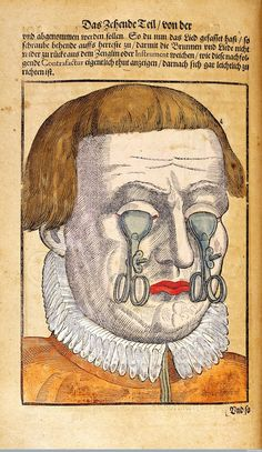 Georg Bartisch's Ophthalmodouleia (1583)