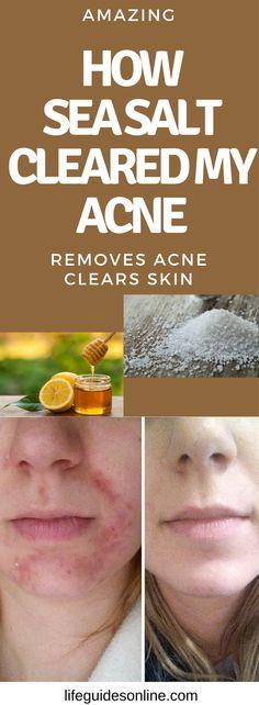 How sea salt cleared my acne fast. DIY acne treatment. Diy beauty tips. beauty tips for women