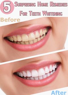 5 Surprising Home Remedies For Teeth Whitening | Healthamania
