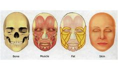 Layers of the face. Bone, muscle, fat, skin.