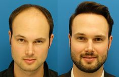 FUE hair transplant in Dubai is one of the more present-day strategies for careful hair rebuilding that you can exploit today. What does FUE mean? It remains for Follicular Unit Extraction and can . Hair Transplant Surgery, Best Hair Transplant, Postpartum Hair Loss, Hair Fixing, Advanced Hair, Male Pattern Baldness, Hair Falling Out, Skin Clinic, Hair Starting