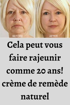 Healthy Beauty, Health And Beauty Tips, Creme Cheese, Home Remedies Beauty, Goji, Creme Anti Age, Face Exercises, Anti Ride, Natural Treatments