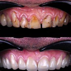 Smile makeover for teeth erosion case Smile Dental, Dental Care, Calcium Phosphate, Smile Makeover, Acidic Foods, Dental Crowns, Fruit Drinks, Cosmetic Dentistry, Dental Health