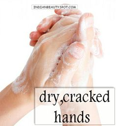 home remedy - dry, cracked hands