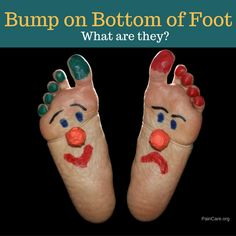 Knotty lump & Bump On Bottom of Foot – What Are They?