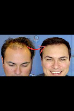 Permanent Hair Loss Treatment Is Hair Transplant | Fue Or Fut?