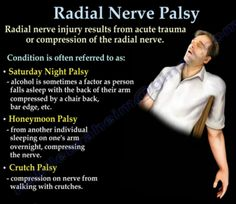 Radial nerve palsy causes