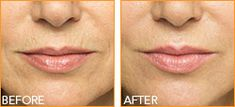 BELOTERO BALANCE® injectable gel is a prescription injection that is used to temporarily smooth out and fill in moderate-to-severe nasolabial folds as well as other moderate-to-severe etched-in lines and wrinkles around your lips and mouth.