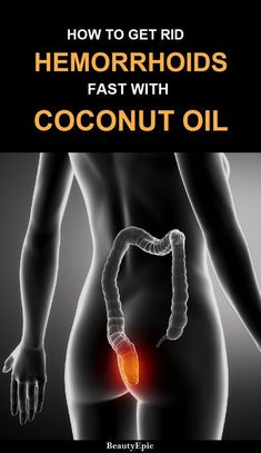 How to Use Coconut Oil for Hemorrhoids
