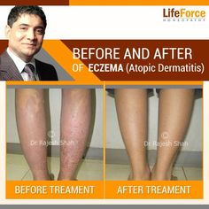 Products For Cellulite Treatment Product Contact Dermatitis Treatment, Aging Backwards, Ideal Body, Male Magazine, Aging Process