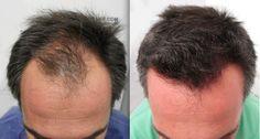 El nuevo suplemento para crecimiento del cabello que está arrasando