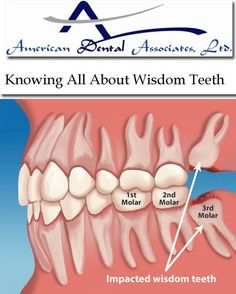 If you are looking for qualified and specialized dental experience in Chicago, American Dental Association is the best option for you. See at more:- http://www.atooth.com/