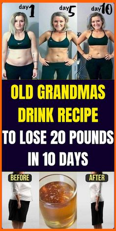 Old Grandmаs Drink Recipe To Lose 20 Pounds In 10 Days Do you want to detox your body of toxic substances and lose some fat? If Yes, then this apple cider vinegar detox drink recipe is just for y. Vinegar Detox Drink, Apple Cider Vinegar Detox, Apple Cider Vinegar For Weight Loss, Apple Cider Vinigar, Apple Cider Drink, Apple Cider Vinegar Benefits, Vinegar Weight Loss, Ginger Benefits, Water Benefits