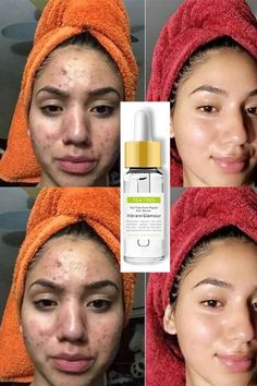 face mapping products scaring remedies scaring treatment scaring treatment diy scars skincare routine treatment treatment overnight acne acne acne acne treatment acne tree oil for acne Tea™ Tree Repair Face Serum Acne Scare . Back Acne Treatment, Natural Acne Treatment, Spot Treatment, Acne Skin, Acne Scars, Acne Face, Tea Tree For Acne, Skin Care Cream, Tips Belleza