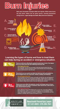 Burns Injuries and How to Treat Them - Infographic. During an accident or emergency, you should know about the 1st, 2nd and 3rd degree burns and how to treat them. If you want more comprehensive information about How to Treat Burns, you can read our article here: http://insidefirstaid.com/emergencies/how-to-treat-different-types-of-burns #treat #burns #emergencies