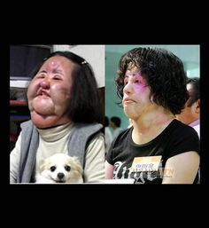 South Korean Hang Mioku - she injected cooking oil into her face in 2008.