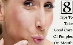 8 Tips To Take Good Care Of Pimples On Mouth And Lips