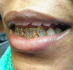 Mouth Grills, Grills Teeth, Girls With Grills, Gangsta Grillz, Cute Jewelry, Jewelry Accessories, Girl Grillz, Gold Slugs, Tooth Gem