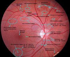 Lesiones retinianas elementales