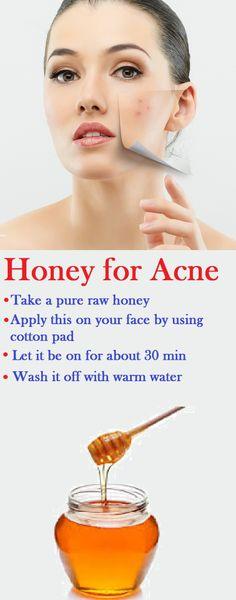 How to Apply Honey to Treat Acne