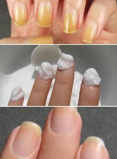 How to Whiten Your Nails
