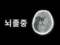 뇌졸중 예방을 위해 반드시 알아야 하는 6가지 사실들 - YouTube Celestial