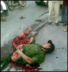 Man is conscious after being cut in half. THIS IS HORRIBLE.