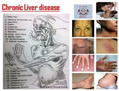 You can find more than 100 liver diseases and each individual has different indicators. The most usual kinds are alcoholic liver disease, hepatitis, cirrhosis and liver disease. The signs of these diseases are often misdiagnosed and discovered to be able to act. Here are some of the most Frequent liver disease symptoms: #fattyliversymptoms,fattylivercleanse,fattyliversymptomssigns,fattyliversigns,fattyliversymptomssignswhattodo,symptomsoffattyliversigns,warningsignsoffattyliver,fattyliver Fatty Liver Symptoms, Fatty Liver Diet, Disease Symptoms, Liver Failure Symptoms, Chronic Kidney Disease, Liver Disease, Gall Bladder Removal, Fatty Liver Treatment, Nursing Information