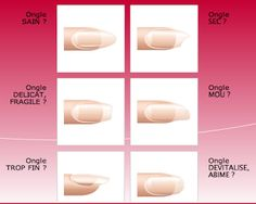 Farmacia Ortopedia Torrens : Muéstranos qué uñas tienes y te daremos el tratamiento más adecuado para ellas