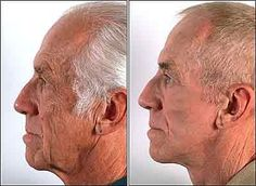 Regenerate sagging face skin and beat wrinkles with face training exercises and acupressure rubbing solutions. The combination is a powerful way to smooth out face wrinkles and raise loose facial skin for a more youthful look. Face Exercises For Men, Do Facial Exercises Work, Toning Exercises, Creme Anti Rides, Creme Anti Age, Facelift Without Surgery, Sagging Face, Face Yoga Method, Face Tightening