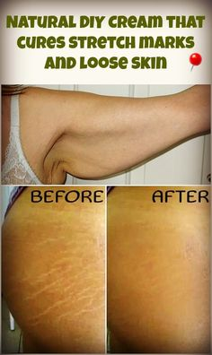 See how you can make at your home an anti-stretch marks cream, to help with sagging skin, stretch marks and also restore the elasticity of your skin.