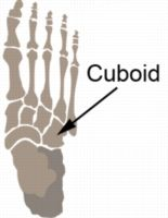 Cuboid Syndrome - also see: http://www.dynamicchiropractic.ca/mpacms/dc_ca/article.php?id=54006