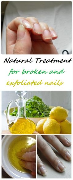 The nails are exfoliated be a condition caused primarily by internal disorder or due to vitamin and mineral deficiencies and consists of broken nails. I think each of us has happened at least once before I peel his nails. This happened when nails were dehydrated and have modified the composition.