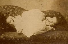 The Jones Twins, a Siamese twin couplet who toured the United States in the late 1800s  only 15 months old at the time of their deaths, had been a sideshow attraction for upwards of half of their lives. The exact reason for their deaths is unknown.